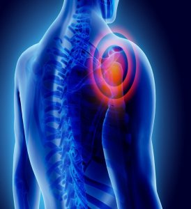 Shoulder Pain and Injuries