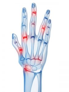 xray of the hand