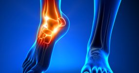 graphics depicting ankle pain