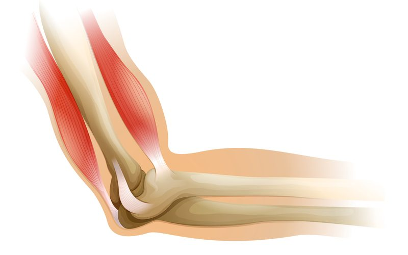 graphics depicting elbow pain