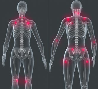 graphics showing joint pain