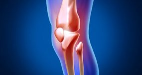 graphics showing knee pain