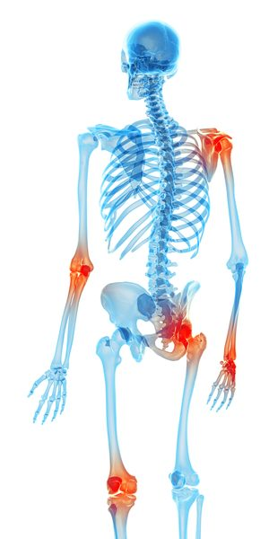 photo showing joint pain