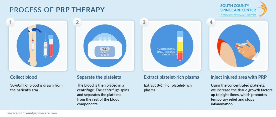 prp therapy poster