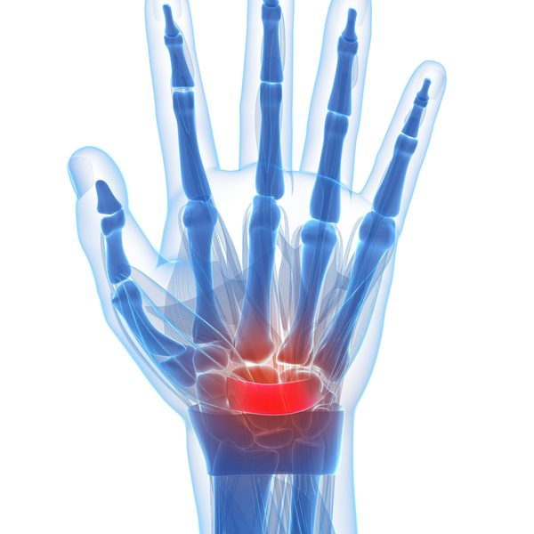 graphics depicting wrist pain