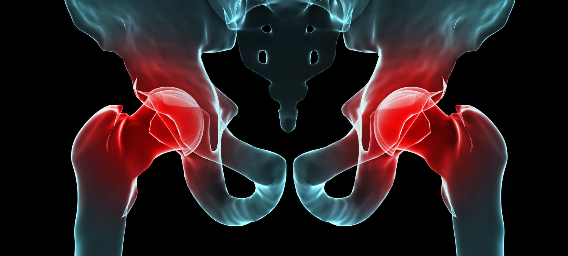 Hip Pain and Injuries Treatment in Morgan Hill
